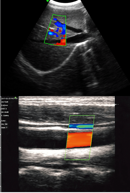 Double Head Color Doppler Ultrasound Scanner Result