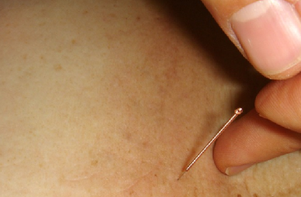 Acupuncture Evaluating the biomechanical effects of needle manipulation on tissue