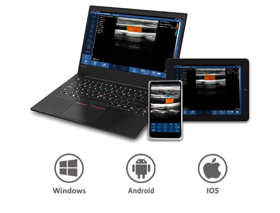 3in1-CLC3CD Wireless 3 in 1 Ultrasound Scanner
