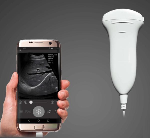 USB-Portable Ultrasound Scanner