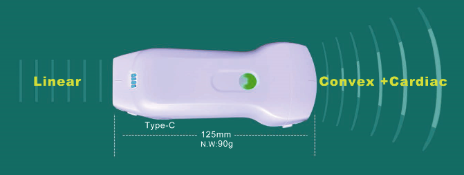 USB and Wireless ultrasound 3in 1 probe