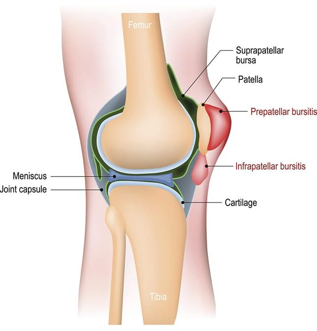 Suprapatellar recess