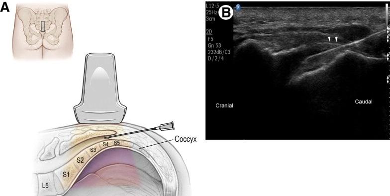 Injecció caudal guiada per ultrasons