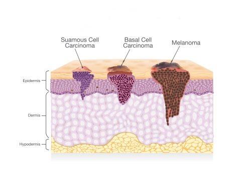 استخدام الماسحات بالموجات فوق الصوتية في إزالة ورم الجلد