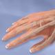 Ultrasound-guided Wrist Arthroscopy